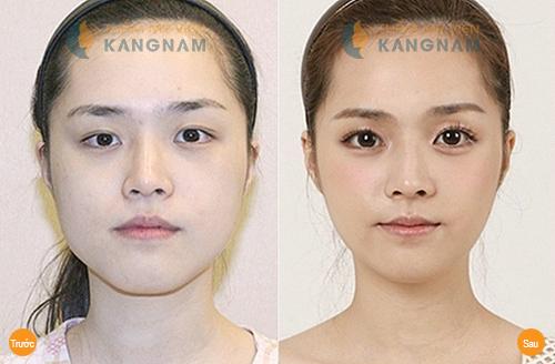 Xăm mí mắt trên - Phương pháp đơn giản làm đẹp cho đôi mắt4