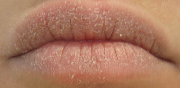 """""""Mách bạn"""" cách làm hồng môi bợt màu vào mùa đông2"""