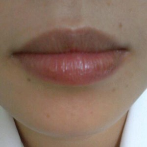 Phun môi thâm có gây đau và nhiễm trùng không ?