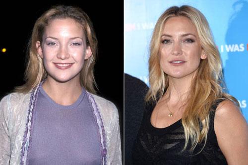 Sao Hollywood quyến rũ hơn khi thay đổi dáng lông mày1