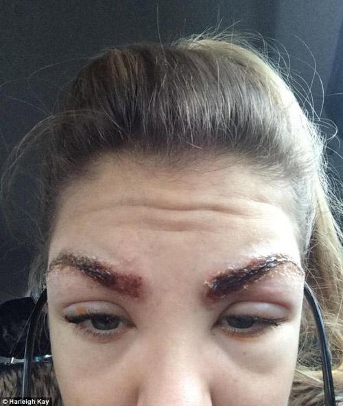 Mắt bị tổn thương nghiêm trọng sau nhuộm lông mày3