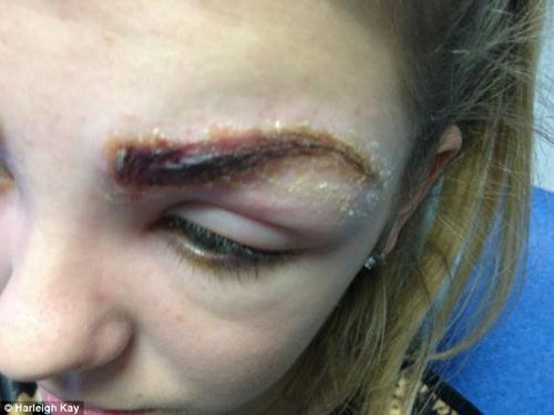 Mắt bị tổn thương nghiêm trọng sau nhuộm lông mày4