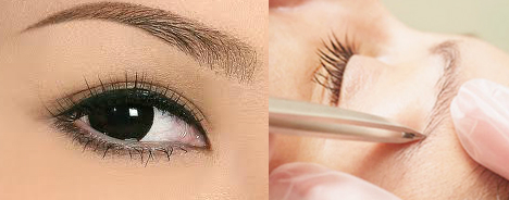 Mắt bị tổn thương nghiêm trọng sau nhuộm lông mày5