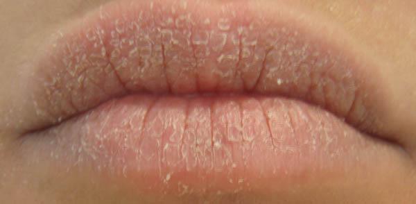 Son trị thâm 30 nghìn đồng, màu hồng đôi môi có quay trở lại?4