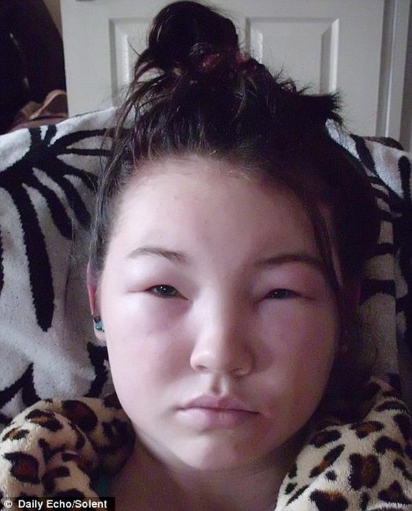 Viêm da, sưng mặt vì làm đẹp bằng thuốc nhuộm lông mày2