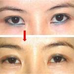 Xóa xăm mí mắt có nguy hiểm không?