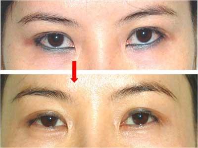 Xóa xăm mí mắt có nguy hiểm không? 4