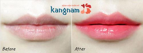 kết quả phun môi màu hồng cam