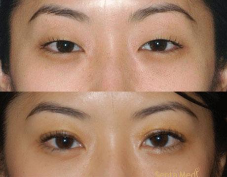 mắt 1 mí 4