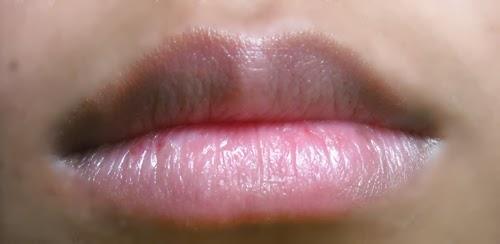 phun môi xong bị thâm