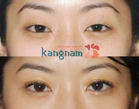 Tổng hợp các câu xung quanh phương pháp phun mí mắt
