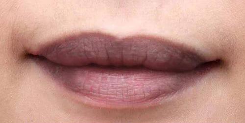 trị môi thâm bẩm sinh 1