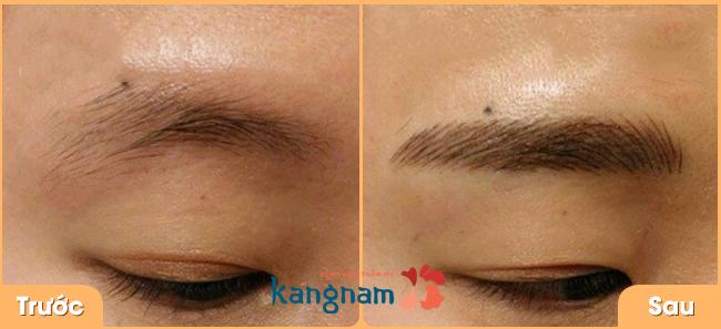 dieu-khac-long-may-cong-nghe-han-quoc-dep-tu-nhien-tai-bvtm-kangnam-1