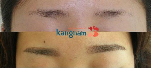 dieu-khac-long-may-cong-nghe-han-quoc-dep-tu-nhien-tai-bvtm-kangnam-3