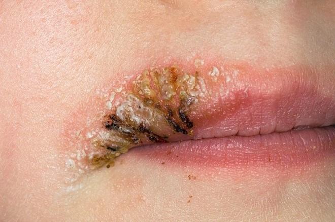 Xăm môi bị nhiễm trùng