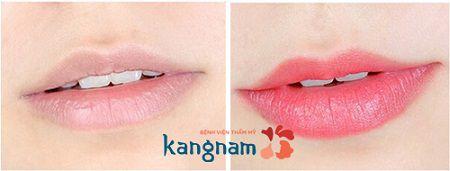môi không đều màu sau khi phun