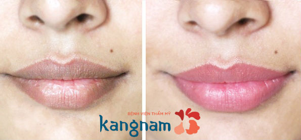 Cách làm hồng môi bằng mật ong112