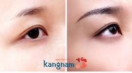 Chi phí phun xăm mí mắt bao nhiêu tiền? – Bảng giá xăm mí mắt tại Kangnam
