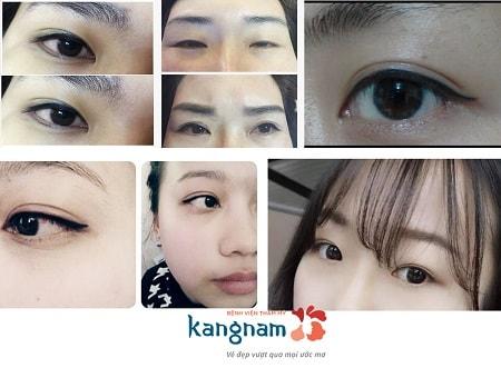 Phun xăm mí mắt – Hình thức trang điểm vĩnh viễn cho đôi mắt