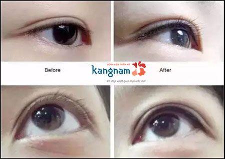 Hướng dẫn chăm sóc sau xăm viền mí mắt để có đôi mắt đẹp