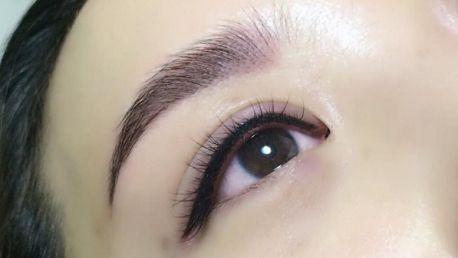 Làm thế nào để giảm sưng sau khi phun mí mắt hiệu quả?1