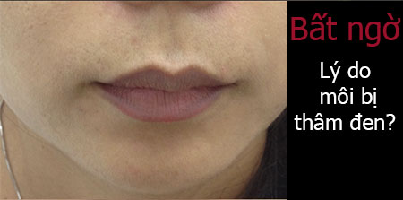 tại sao môi bị thâm
