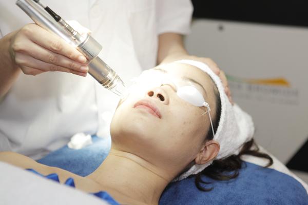 Điều trị nám râu tại Kangnam
