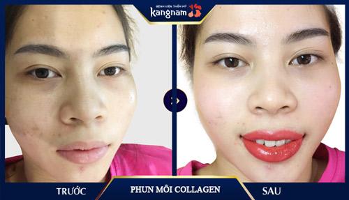 phun môi collagen có hại không