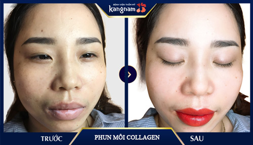 có nên phun môi collagen không