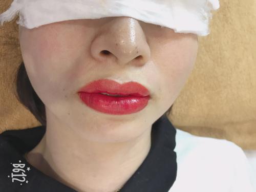 phun môi bị sưng