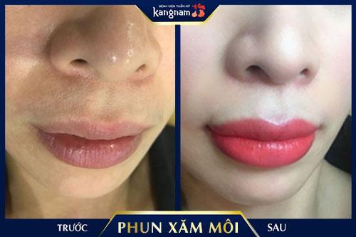 tác hại xăm môi