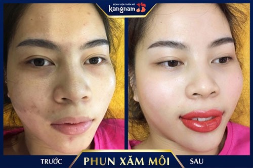 tác hại của xăm môi