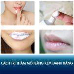 Cách trị thâm môi bằng kem đánh răng có thực sự hiệu quả hay không?